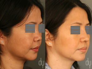 Before and After augmentation Asian rhinoplasty with DCF (diced cartilage fascia) and rib cartilage harvest.