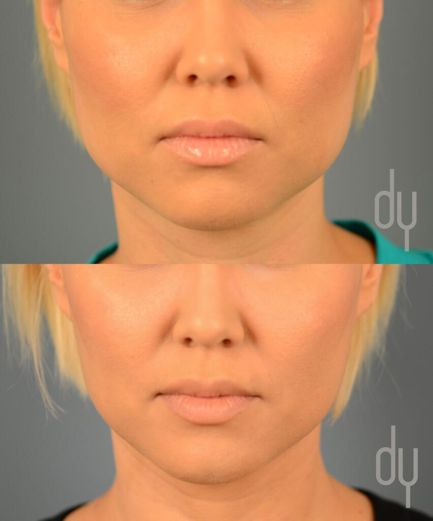 Botox for masseter reduction (jaw reduction) performed to taper and slim the face.