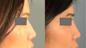 Before + After non-surgical rhinoplasty for softening and straightening profile.