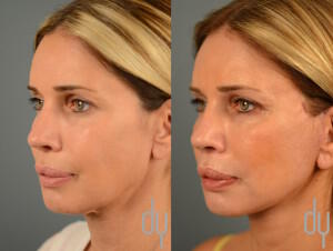 AVBeforeAfterFaceliftLeftOblique