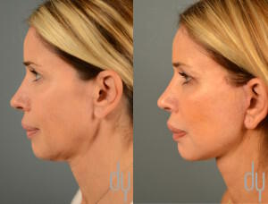 Before and After Deep Plane Facelift Surgery (Rhytidectomy)