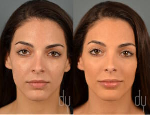 Before and After lip augmentation with Restylane®, Restylane Silk®, Juvederm Ultra®.