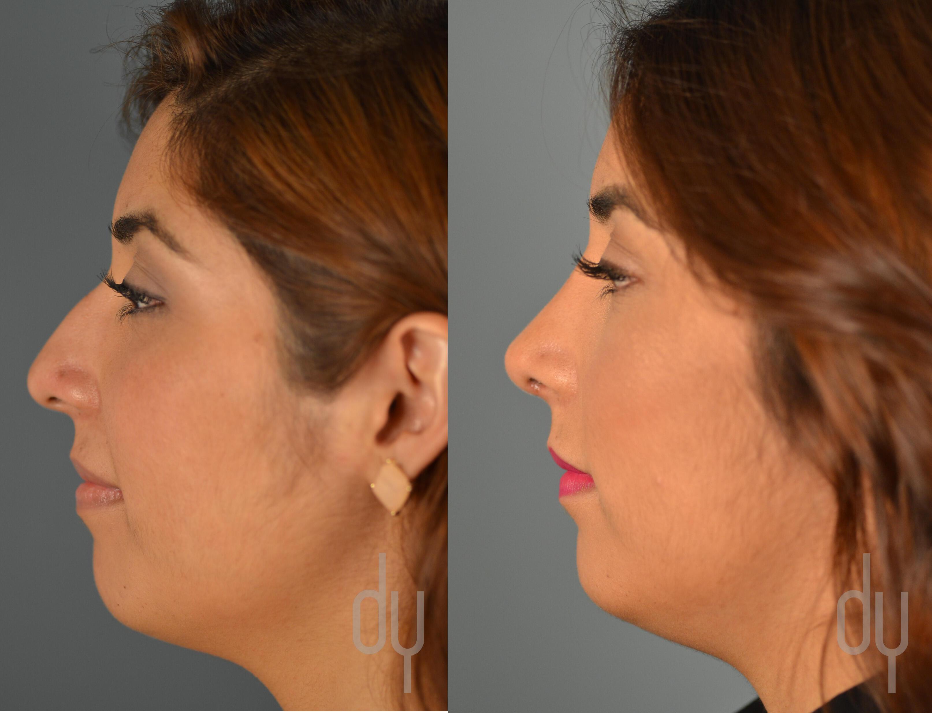 Rhinoplasty Nose Job Recovery With Rhinoplasty