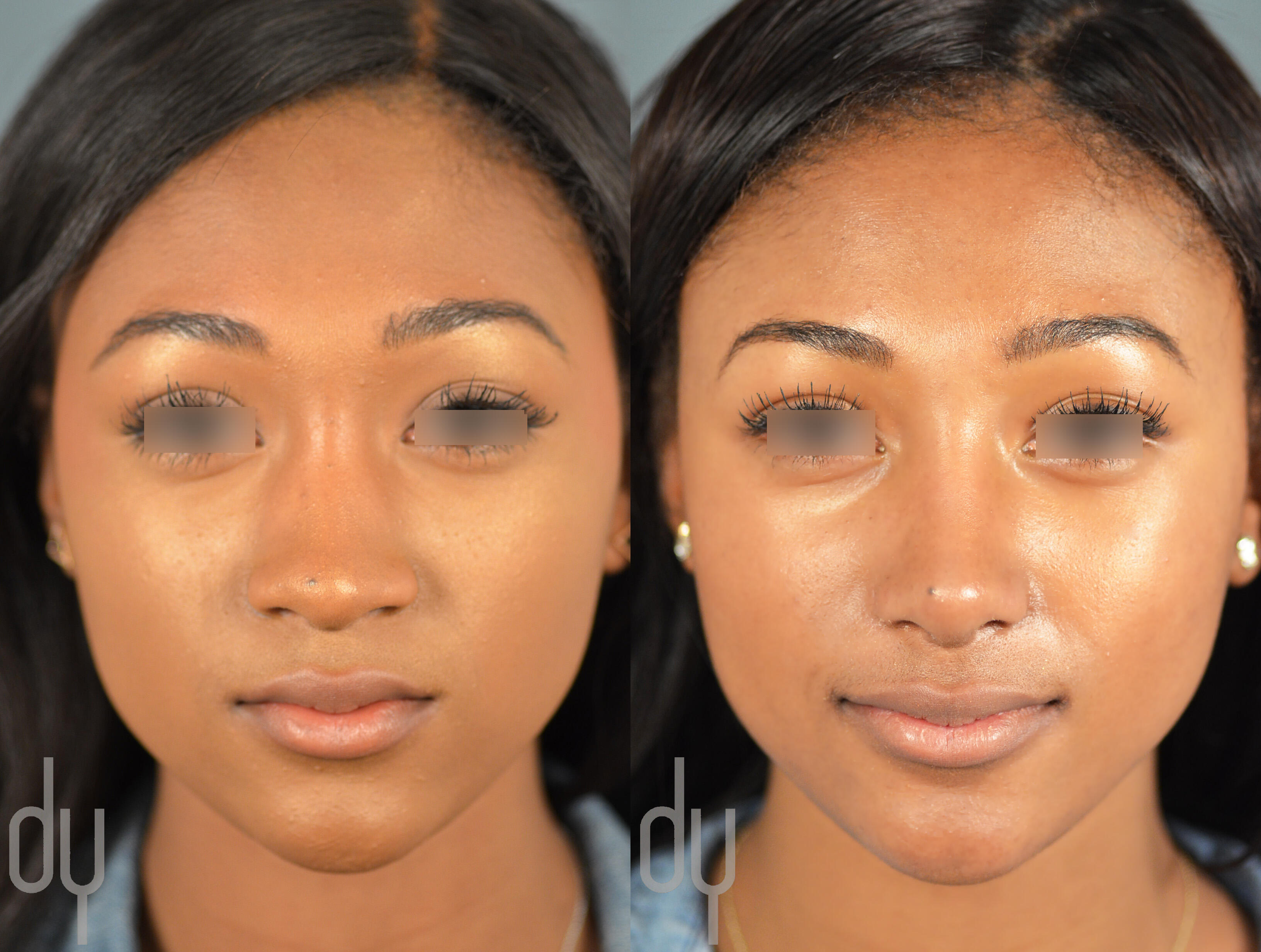 African American Female Primary Rhinoplasty Tip Refinement