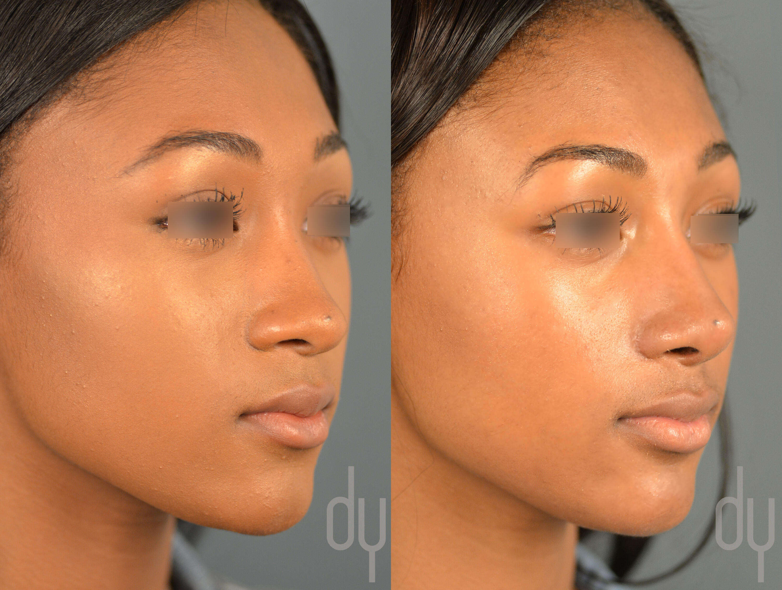 rhinoplasty a surgical procedure Rhinoplasty overview jay m dutton, md facs introduction the term rhinoplasty refers to surgery performed to alter the structure of the external nose, and is commonly referred to as a nose job.