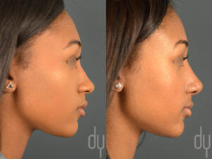 African American Female Rhinoplasty - Right Profile View