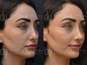 Revision Rhinoplasty Right 3qt View