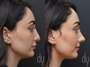 Revision Rhinoplasty Right Profile View