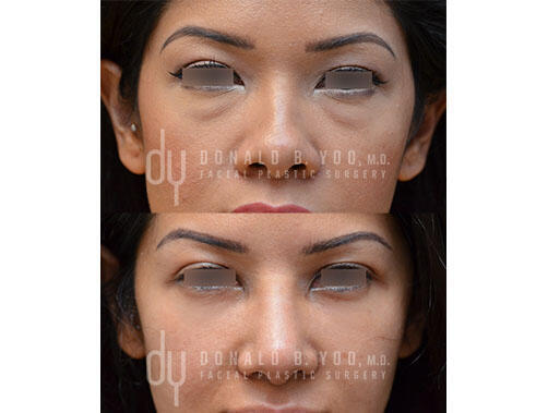 SURGICAL :: BLEPHAROPLASTY<br>Lower Blepharoplasty