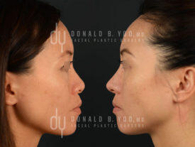 SURGICAL :: RHINOPLASTY<br>Asian Rhinoplasty