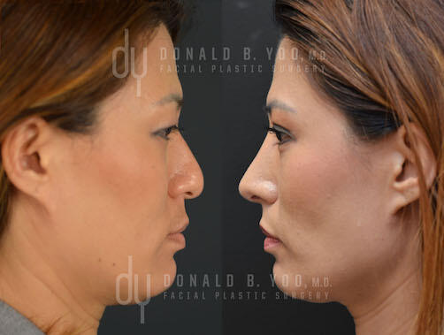 SURGICAL :: RHINOPLASTY<br>Asian Rhinoplasty with DCF