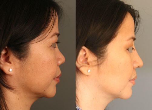 SURGICAL :: RHINOPLASTY<br>Asian Rhinoplasty with Rib Cartilage and DCF