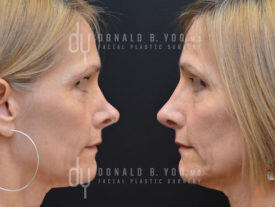 SURGICAL :: RHINOPLASTY<br>Revision Rhinoplasty