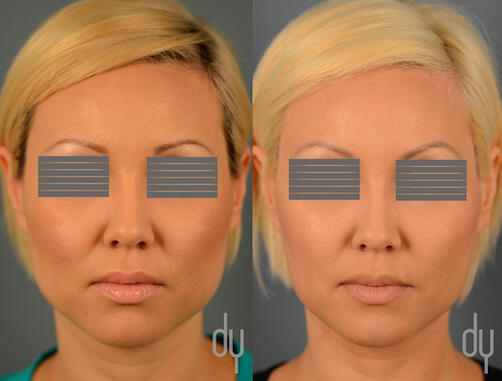 NONSURGICAL :: BOTOX<br>V-line Masseter Reduction