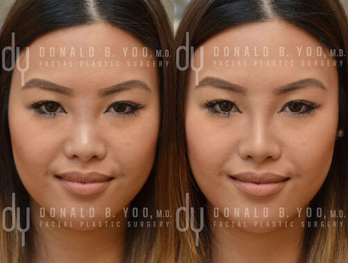 NONSURGICAL :: FILLERS<br>Nonsurgical Rhinoplasty
