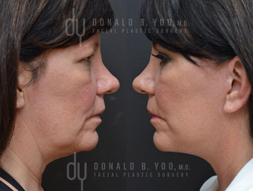 SURGICAL :: FACELIFT<br>Deep Plane Facelift and Upper Blepharoplasty
