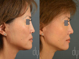 SURGICAL :: RHINOPLASTY<br>Asian Revision Rhinoplasty