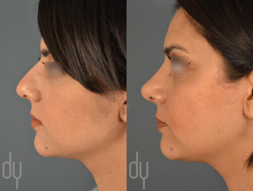 SURGICAL :: RHINOPLASTY<br>Primary Rhinoplasty