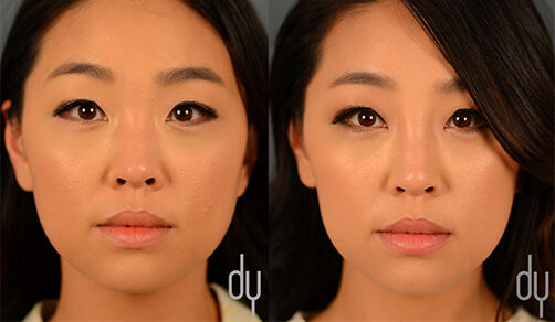 SURGICAL :: BOTOX<br>V-line Masseter Reduction