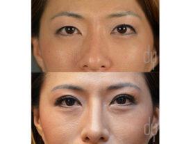 SURGICAL :: BLEPHAROPLASTY<br>Upper Blepharoplasty | Asian Double Eyelid