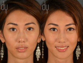 NONSURGICAL :: FILLERS<br>Nonsurgical Rhinoplasty and Nonsurgical Chin Augmentation