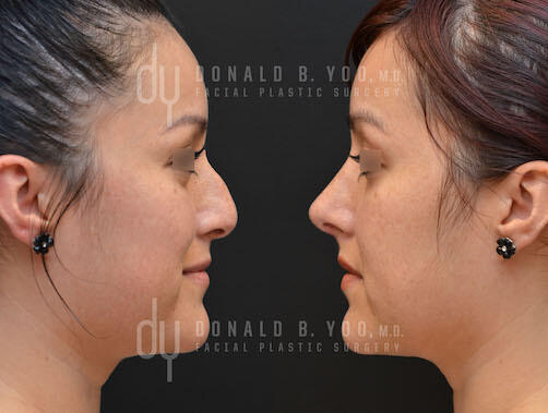 SURGICAL :: RHINOPLASTY<br>Primary Rhinoplasty and Septoplasty