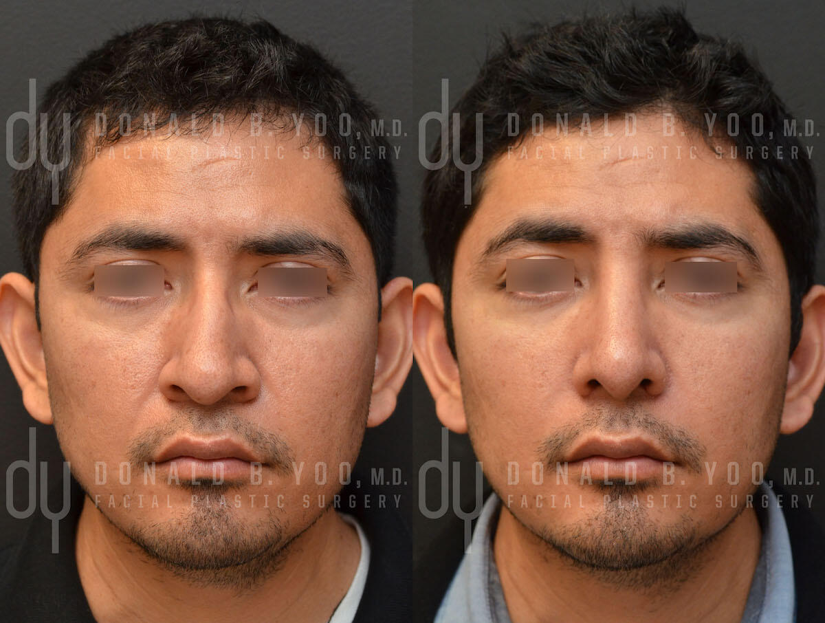 SURGICAL :: RHINOPLASTY<br>Primary Rhinoplasty and Septoplasty with Alar base reduction
