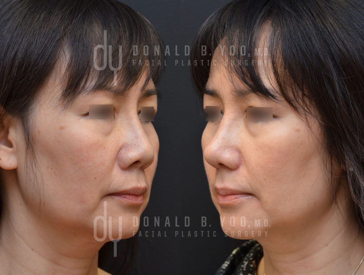 SURGICAL :: RHINOPLASTY<br>Revision Asian Rhinoplasty with Alar base reduction