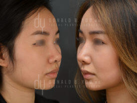 SURGICAL :: RHINOPLASTY<br>Asian Rhinoplasty with Alar base reduction