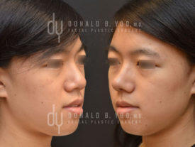 SURGICAL :: RHINOPLASTY<br>Asian Rhinoplasty with Rib Cartilage