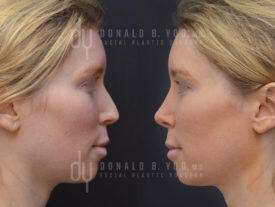 SURGICAL :: RHINOPLASTY<br>Revision Rhinoplasty and Septoplasty