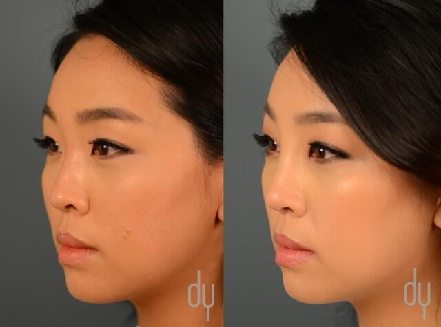 Before and After Non Surgical Nose Job