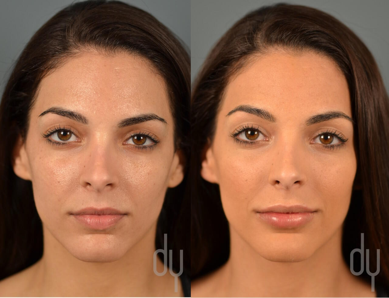NONSURGICAL :: FILLERS <br> Lip Augmentation