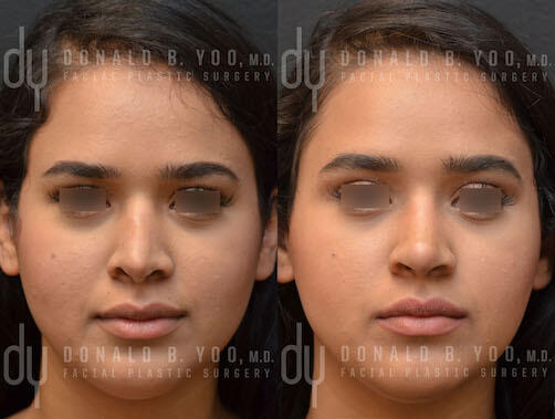 SURGICAL :: RHINOPLASTY<br>Revision Rhinoplasty with Rib Cartilage and Composite Grafts