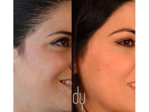 NONSURGICAL :: BOTOX<br>Crows feet