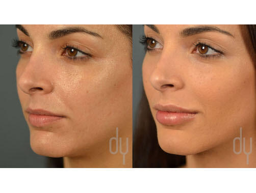 NONSURGICAL :: FILLERS<br>Lip Augmentation