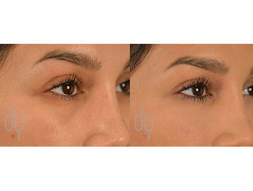 NONSURGICAL :: FILLERS<br>Tear Trough Under Eye Filler