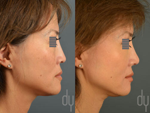 SURGICAL :: RHINOPLASTY<br>Revision Asian Rhinoplasty with Rib Cartilage and DCF