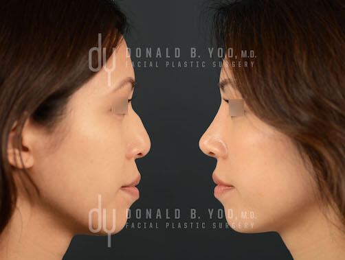 SURGICAL :: RHINOPLASTY<br>Asian Rhinoplasty with Ear Cartilage and DCF