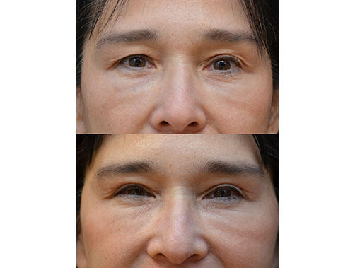 SURGICAL :: BLEPHAROPLASTY<br>Upper Blepharoplasty