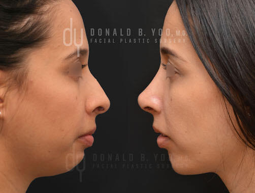 SURGICAL :: RHINOPLASTY<br>Primary Rhinoplasty and Chin Augmentation