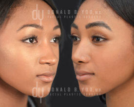 SURGICAL :: RHINOPLASTY<br>African American Rhinoplasty with Rib Cartilage and DCF