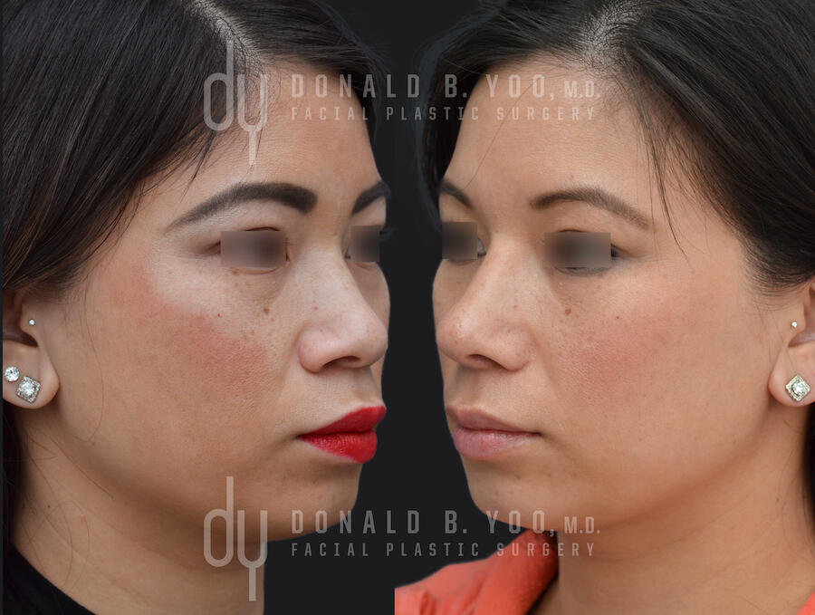 SURGICAL :: RHINOPLASTY<br>Asian Rhinoplasty with Alar Base Modification