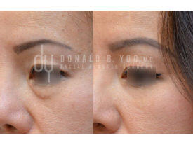 SURGICAL :: BLEPHAROPLASTY<br>Lower Blepharoplasty with Fat Repositioning