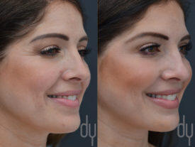 NONSURGICAL :: BOTOX <br>Crows feet