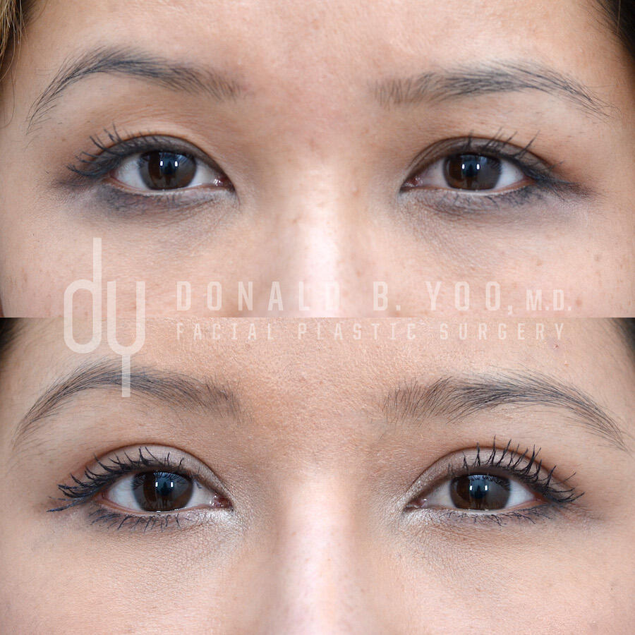 SURGICAL :: BLEPHAROPLASTY<br>Upper Blepharoplasty | Asian Double Eyelid