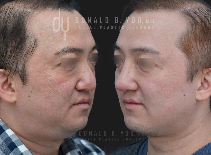SURGICAL :: RHINOPLASTY<br>Rhinoplasty and Chin Augmentation