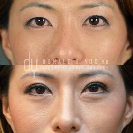 SURGICAL :: BLEPHAROPLASTY<br>Upper Blepharoplasty   Asian Double Eyelid
