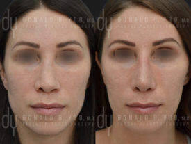 SURGICAL :: RHINOPLASTY<br>Revision Rhinoplasty with Rib Cartilage and DCF