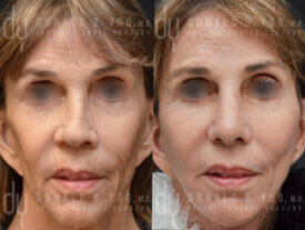 SURGICAL :: FACELIFT<br>Deep Plane Facelift and Rhinoplasty